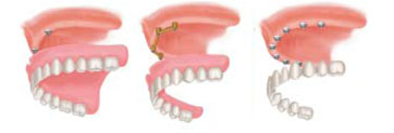 Multiple Teeth Replacements - Dental Implants