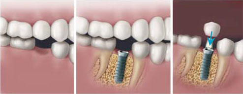 Dental Implants - Single Tooth Replacement